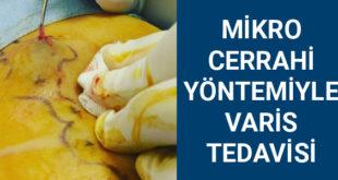 mikro cerrahi varis tedavisi